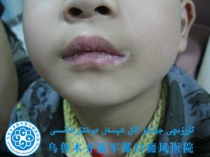 黄某/男性/局限型/嘴角白斑